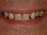 Before Smile - Ten porcelain veneers to be fitted