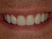 After Smile - Ten porcelain veneers fitted