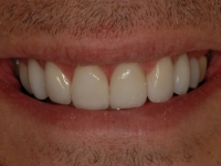 After Smile - Ten porcelain veneers fitted