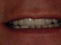 After smile - Orthodontics, dental implants, veneers & teeth whitening
