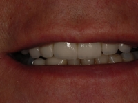 After smile - Orthodontics, dental implants, veneers & teeth whitening