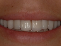After smile - Porcelain veneers and teeth whitening