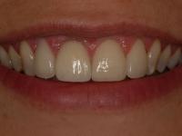 After smile - 3 veneers and a dental crown