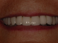 After smile - dental bridges and crowns