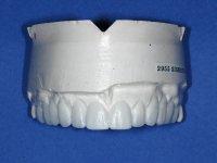 upper teeth model