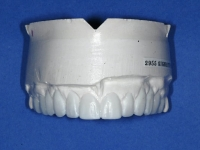 upper teeth model