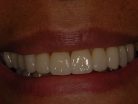 After smile - Porcelain veneers & dental crowns