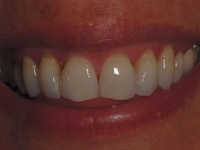 After smile - Clearstep orthodontics