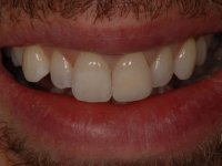 After smile - Professional tooth whitening and a white front tooth restoration filling