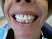 After smile - Professional teeth whitening