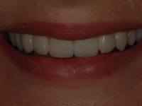 After smile - Veneers