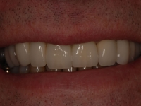 After smile - Several dental bridges and crowns