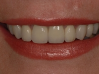 After smile - a mixture of dental crowns and veneers fitted