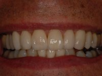 After smile - porcelain veneers fitted