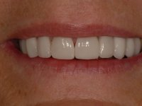 After smile - Orthodontics followed by ten porcelain veneers