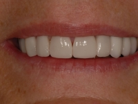 After smile - Orthodontics followed by ten porcelain veneers