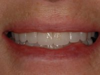 After smile - porcelain veneers