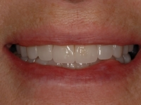 After smile - porcelain veneers