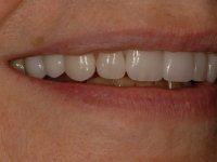 After smile - 10 porcelain veneers & lower teeth whitening