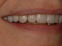 After smile - 10 porcelain veneers & lower teeth whitening