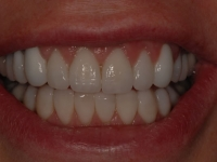 After smile - upper and lower porcelain veneers