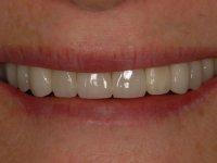 After smile - Porcelain veneers and teeth whitening
