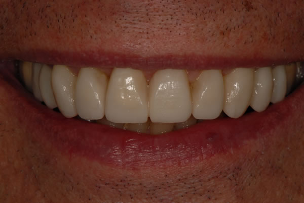 E-Consult Dentistry, Cosmetic Dentistry In Dorset