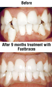 fastbraces - fast working orthodontic braces