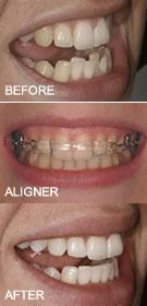 inman braces