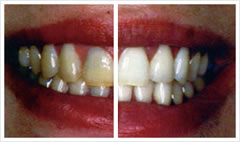 teeth whitening comparison on Poole client