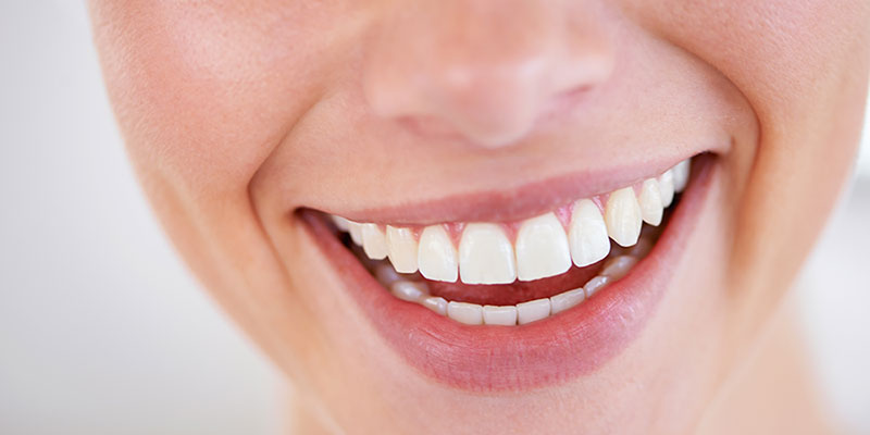 Smile design with Cosmetic dentistry & tooth whitening
